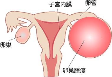腫瘍 卵巣 境界 悪性
